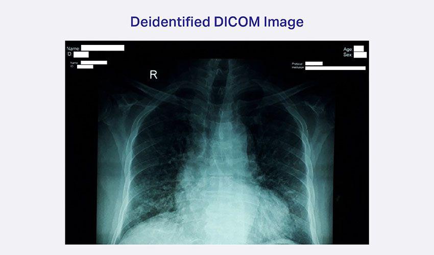De-Id Dicom Image